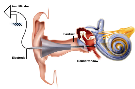transtympanic inner ear steroid perfusion